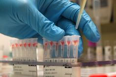 Bancos de sangre no reciben donantes por falta de reactivos #Salud