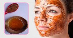 Acne e brufoli possono lasciare segni sulla pelle del viso, sotto forma di lesioni o [Leggi Tutto...]
