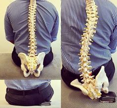 Sitting on your wallet creates asymmetry or imbalance that distorts pelvis and hips. This is exactly why you shouldn't keep your wallet in… Scoliosis Exercises, Back Pain Exercises, Clinique Chiropratique, Studio Pilates, Homeopathy Medicine, Health World, Spine Health, Chiropractic Care, Chiropractic Adjustment