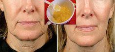Már az első alkalom éveket fiatalít az arcodon ezzel a filléres kezeléssel! - Blikk Rúzs