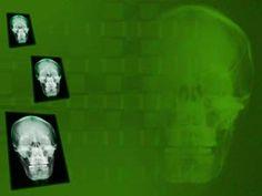 Skull x ray 01 medicine powerpoint templates medicineppt skull x ray 02 medicine powerpoint templates toneelgroepblik Choice Image