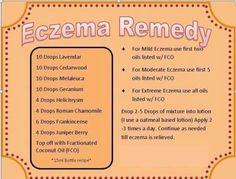 Ekzem-Tipps und Tricks für die Hautpflege - eczema Treatment for kids, Essential Oils For Eczema, Essential Oil Uses, Young Living Essential Oils, Pure Essential, Eczema Remedies, Natural Remedies, Homeopathic Remedies, Gastro, Essential Oil Diffuser Blends