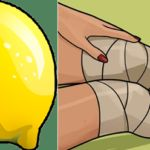 Knee pain Videos After Surgery - - - Knee pain Relief Tumeric - Knee pain Chart - Knee pain Workout Arthritis, Baker's Cyst, Knee Pain Relief, After Surgery, Doterra Essential Oils, Beauty Recipe, Natural Remedies, Fitness, Lemon