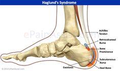 Retrocalcaneal bursitis:  bursae located between posterior calcaneus and Achilles tendon & Achilles tendon and skin; associated with Haglund's deformity (bony spur on posterosuperior aspect of the calcaneus)