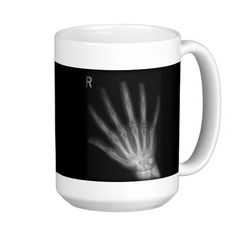 Extra Digit X-ray Right and  Left Hands Coffee Mug by #gravityx9 #xray