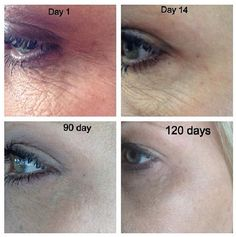 Give Nerium 1 year, and they'll give you back 10! Guaranteed! www.perfectsolution.nerium.com
