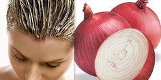 Słaba jakość włosów jest częstym problemem kosmetycznym u wielu kobiet. Jeśli tęsknisz za błyszczącymi, silnymi i zdrowymi włosamidobrze trafiłaś! Wiele kobiet doświadczyło nadzwyczajnych korzyści z czerwonej cebuli stosując jąw leczeniu przerzedzonych włosów. Dermatolodzy potwierdzają, że zabieg