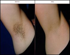 Say goodbye to hairy underarms! Schedule an appointment with us today. www.capitallaser.net #laserhairremoval