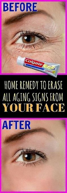 Home Remedy To Erase All Aging Signs From Your Face #HomeRemedyToEraseAllAgingSignsFromYourFace