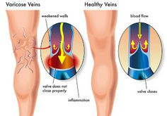 9 Tips to Overcoming Varicose Veins - Varicose Veins Treatment