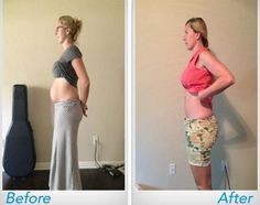 Belly After Baby, Post Baby Belly, Mom Body, Baby Body, Weight Loss Routine, Weight Loss Blogs, Best Postpartum Belly Band, Best Shapewear For Tummy, Burn Belly Fat