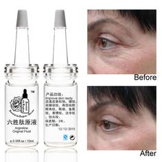 10ml*2pcs Argireline original fluid liquid Anti wrinkle moisturizing skin care anti aging Crow's feet, eye bags, wrinkles //Price: $27.44 & FREE Shipping //     #hairextension #style #beauty #woman #love