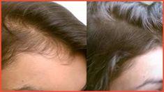 3cas huile coco, 2 cas de vit E,  5 gouttes de huile essentielle menthe poivrée. Melanger  et appliquer sur cheveux secs de la racine au pointe masser pendant 10 min et laisser poser 1H puis laver. Répéter 1 fois par semaine.