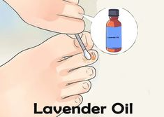 14 Home Remedies To Fight Athlete's Foot Skin Rash Causes, Athlete's Foot, Oil Water, Carrier Oils, Lavender Oil, Home Remedies, Peppermint, How To Apply, Mint