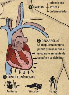 Miocarditis   Magazine 05-2013   Infografía salud #miocarditis #myocarditis #health