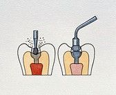 Temporary Fillings - A temporary filling is a type of non-permanent restoration, often a white or grayish color used for procedures which require more than one visit to your dentist. They are mainly used as a temporary measure until a new permanent restoration is ready to be applied. http://www.topdentist-ny.com/temporary-fillings