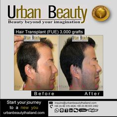 Hair Transplant Holidays! Hair-Raising Cosmetic Procedures in Specialist Clinics in Bangkok and Phuket, Thailand. Urban Beauty Thailand offer Lowest Price FUE Hair Transplant Thailand as $1 USD per graft only, 3,000 grafts/98,000THB/approx.$2,800USD Save up to 70% less than your countries with Hair Transplant in  Bangkok, Thailand A BLEND OF NEW TECHNOLOGY AND EXPERTISE! Hair Transplant Thailand More info www.urbanbeautythailand.com or inquire@urbanbeautythailand.com Ambassador Hotel…