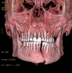 Broken chin, 3D CT scan (I can't imagine how painful this must be, but this CT is cool!!)