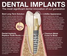 DENTAL IMPLANTS The most significant dental innovation of our generation ...