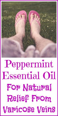 How to use peppermint essential oil to naturally treat varicose veins in your legs.