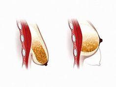 Здоровое питание и долголетие. Как сохранить молодость.: Как подтянуть грудь за неделю