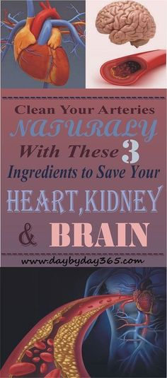 Read  Repin !! - Should Try This 3 Natural Ingredients To Clean Your Arteries and Feel better than Ever !!