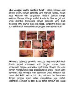 Obat Jengger Ayam - apakah anda sedang mencari obat jengger ayam yang paling ampuh? denature indonesia menyediakan obat herbal jengger ayam tanpa operasi merontokan kutil kelamin atau jengger ayam sampai akarnya tanpa efek samping