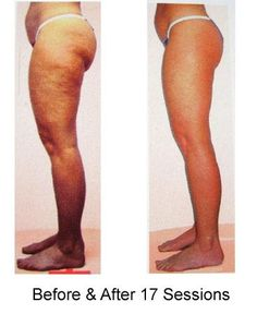 Collagen Red Light Therapy Cellulite