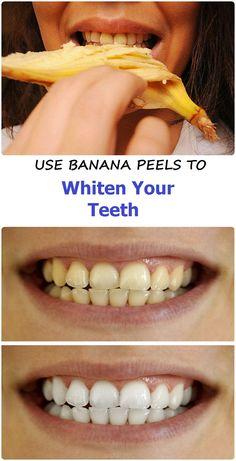 Use banana peels to whiten teeth