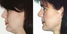 Smart Face Workouts: Face Toning And Double Chin Remedies To Tone The Jawline And Jowls