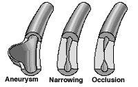 Polymyalgia Rheumatica & Giant Cell Arteritis: WYNTK