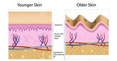 Close up cross-sectional diagram of skin. Younger and Older