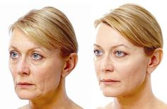 Facial Yoga Workout Regime And Natural Facelift Workout Remedies