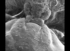 Electron Microscope Photos Show Spider Skin, Coffee, Dandelions, Tomato In Extreme Close-Up