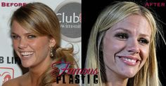 Brooklyn Decker Ruined Her Face With Bad Plastic Surgery and Veneers