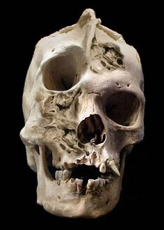 Human skull deformity that no amount of cosmetic surgery could correct
