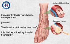 Diabetic Neuropathy damages nerves, caused due to Diabetes. A few symptoms of it includes sharp pain, frequent urination, muscle weakness, one side paralysis and sexual related problems both in men and women. Get best treatment for Diabetic Neuropathy to cure permanently. Homeopathy is the best treatment for diabetic neuropathy to treat naturally. Homeocare International is the world class homeopathic clinics over South India, offers best homeopathy treatment for Diabetic Neuropathy.