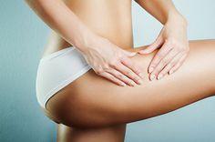 """As estrias são marcas que surgem na pele, especialmente, nas zonas das mamas, coxas, barriga e nádegas. As estrias resultam do """" rompimento"""" da pele quando"""