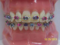 Fashionable Braces - General Dentist, Orthodontics/Braces