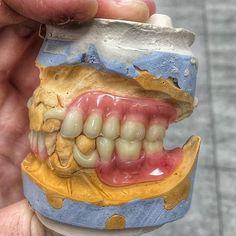Follow ✅ @dental_gods . . Author - unknow (If someone know, please, write me) . . #dentista #odonto #odontologos #odontologia #odontología… Dental Design, Dental Art, Dental Humor, Dental Hygienist, Dental Lab Technician, Dental Photography, Beautiful Teeth, Dental Laboratory, Food