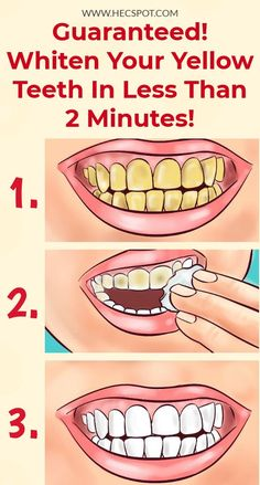 Whiten Your Yellow Teeth In Less Than 2 Minutes! Here is the recipe on how to whiten your yellow teeth in less than 2 minutes.Here is the recipe on how to whiten your yellow teeth in less than 2 minutes. Beauty Tips For Teens, Beauty Tips For Hair, Beauty Secrets, Beauty Hacks, Beauty Tutorials, Hair Beauty, Teeth Health, Healthy Teeth, Healthy Nails