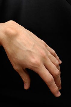 How to get rid of a Ganglion Cyst Painlessly