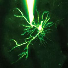 Las simples dendritas neuronales pueden realizar cálculos