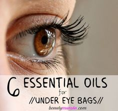 Get rid of under eye bags with essential oils! Recipes included!
