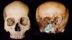 History of the Starchild  Skull @ http://www.starchildproject.com/the-project/history-of-the-starchild-skull