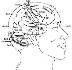 """Chinese scalp acupuncture integrates traditional Chinese needling methods with Western medical knowledge of cerebral cortex, has been proven to be a very effective technique for treating multiple sclerosis, central nervous disorders."" Hao, J. J.. (2013). ""Treatment of multiple sclerosis with chinese scalp acupuncture."" Glob Adv Health Med 2(1): 8-13. Matrix Energetics, Reiki. http://SensationalMedicine.CreatingCalmNetwork.com @KimberlyBurnham Individualized consultations via phone or Skype."