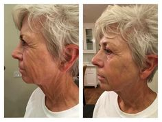 """WOW Genius Ultra! Genius Ultra. Is it really THAT good? Since Arbonne sold a predicted 6 months worth of inventory in 13 days, I'd say YES! Zanita Dever said after just one use of our new Magic ultrasound wand, """"I'm so excited I feel like 70 really is the new 40! I can't believe I am posting naked face pics, these are just me - no makeup - so amazing it really works!!"""""""