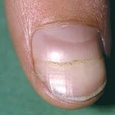 horizontal groove on nail