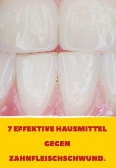 7 effektive Hausmittel gegen Zahnfleischschwund.