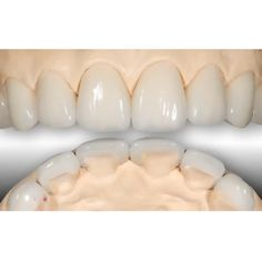 Cosmetic Dentistry, Video Link, Restoration, Triangle, Bob, Challenges, Spaces, Facebook, Jeeps